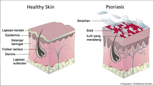 mencegah kanker kulit