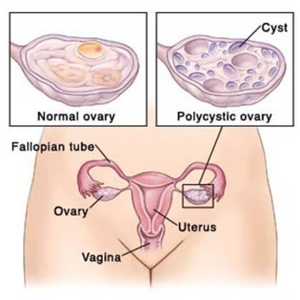 penyebab susah hamil