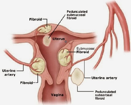 mioma yang mengganggu kesehatan wanita