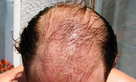 Cara Mengatasi Rambut Rontok Dengan Jahe