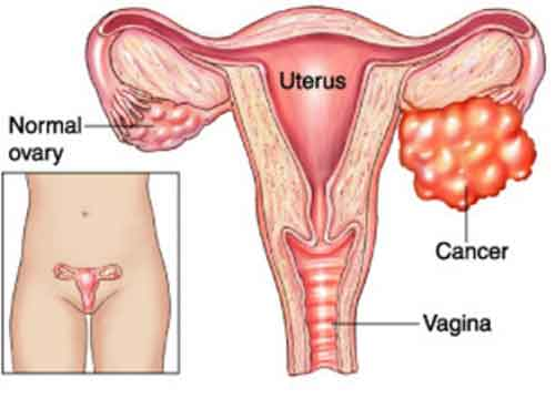 kista ovarium