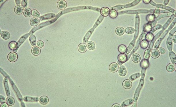 penyebab keputihan, jamur candida albicans