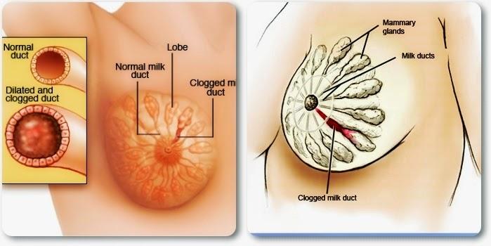 mastitis atau payudara bengkak