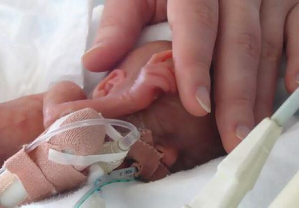 bayi prematur - Bahaya Toxoplasma Pada Ibu hamil Dan Janin