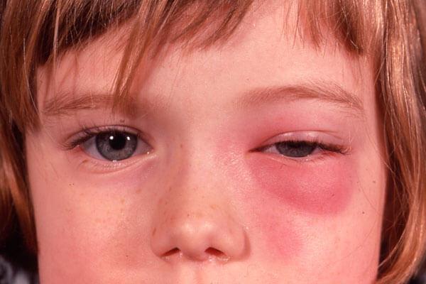 macam-macam penyakit mata anak