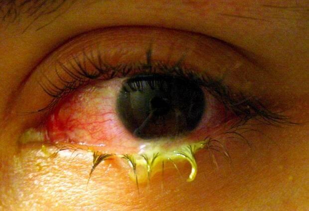 mengobati mata belekan