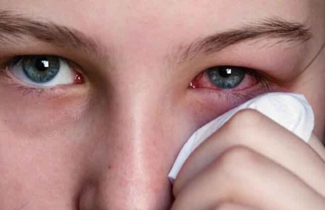 mengobati sakit mata